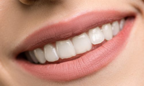 Hoe verwijder je tandsteen?